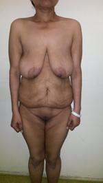 Post-Bariatric-Pre-op-(1)